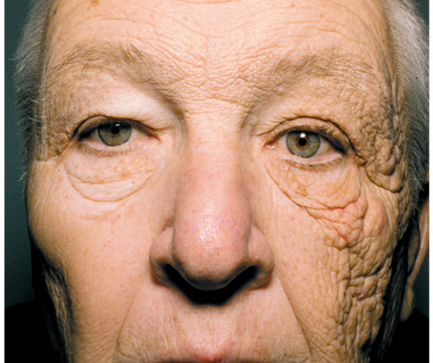 A 69-year-old former truck driver shows the effects of sun exposure on one side of his face. CREDIT: Jennifer Gordon/NEJM